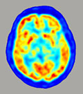 PET scan of the human brain